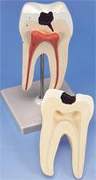 Lower Twin-Root Molar Tooth w/ Cavities