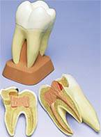 Triple-Root Molar Model