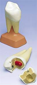 Molar w/ Cavities Model