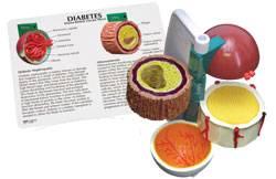 4-Piece Diabetes Model