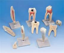 Classic Tooth Anatomical Model