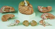 Medical Divided Brain