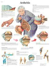 Professional Arthritis Chart