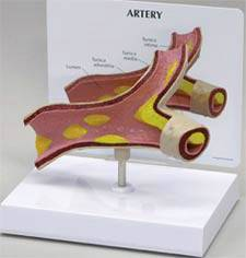 Artery Model w/ Plaque