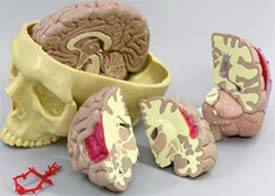 Brain Model - Half Normal  Half Pathology