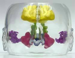 Clear Sinus Model