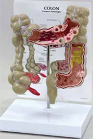 Colon Model w/ Pathologies