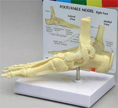 Foot & Ankle Model w/ Plantar Fasciitis