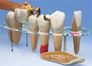 Giant Dental Anatomy Series
