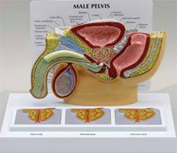 Male Pelvis Cross Section w/ Enlarged Prostates