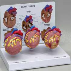 Mini Heart Model Set