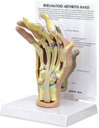 Rheumatoid Arthritis Hand Model