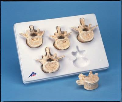 Lumbar Vertebrae Model