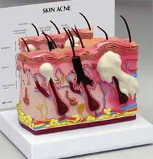 Skin Model Normal  Acne