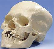 Skull w/ Cleft Jaw & Plate