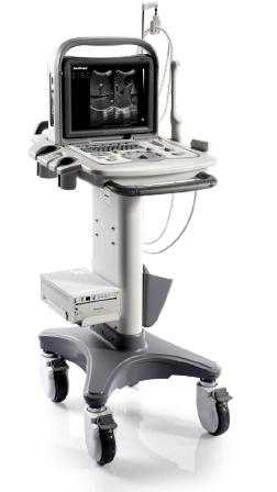 SonoScape Portable Ultrasound System