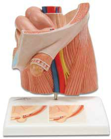Standard Anatomical Inguinal Hernia Model