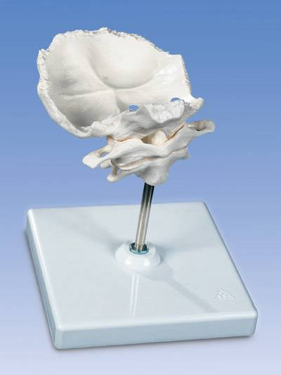 Occipital Plate Model