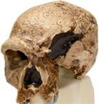 Steinheim Anthropological Skull