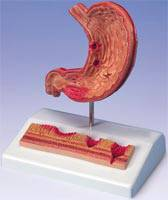 Stomach Anatomy Model with Ulcers