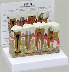 Teeth w/ Pathologies Dental Model