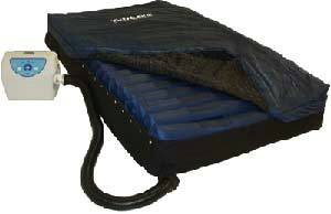 True Low Air Loss Mattress System
